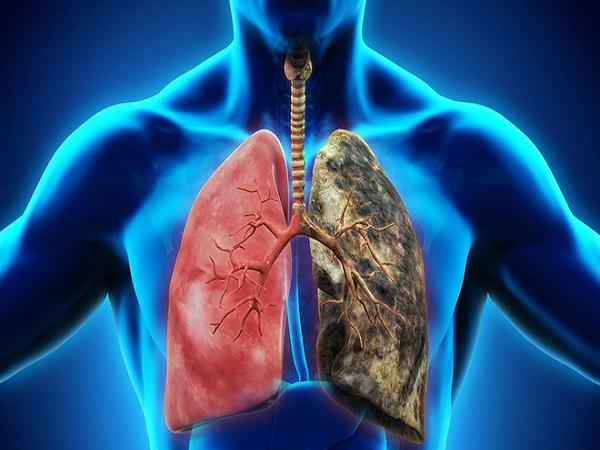 3 cách đơn giản phòng ngừa ung thư phổi
